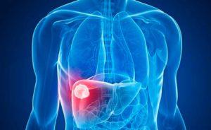 qué es el hígado graso
